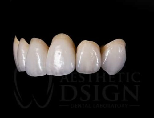 Tips for Selecting Tooth Shades