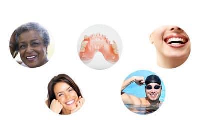 valplast flexible dentures